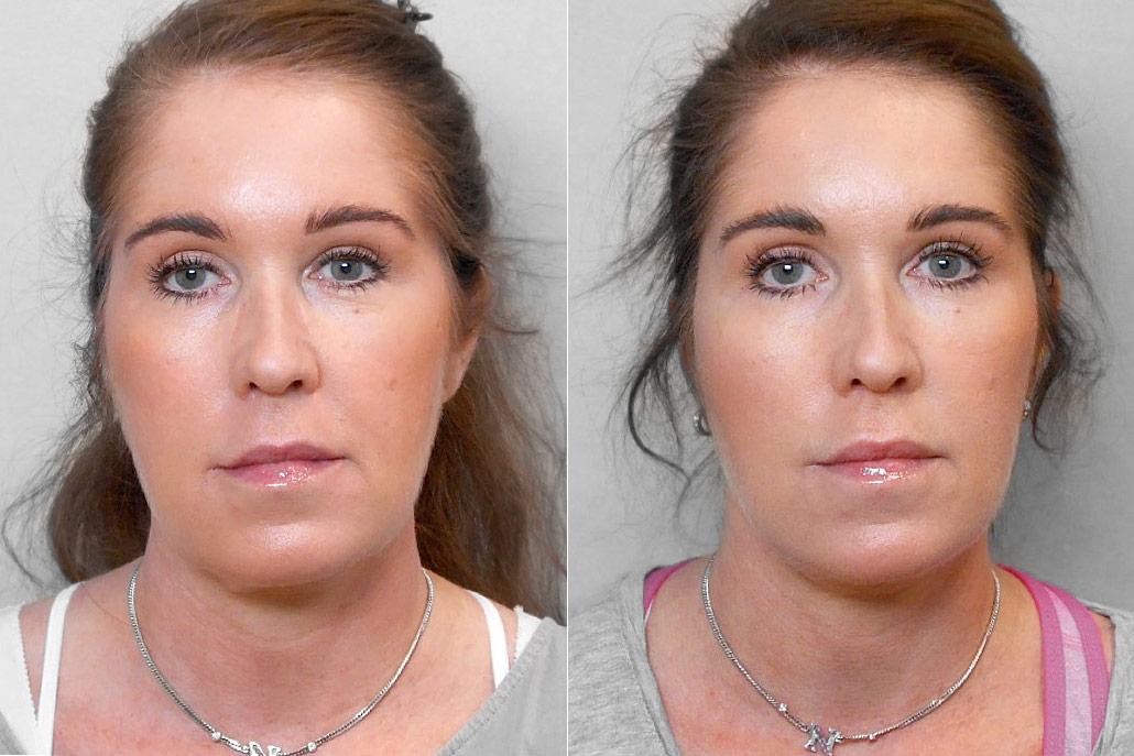 Före- och efterbild på kvinna som genomfört ett ansiktslyft + övre ögonlocksplastik.