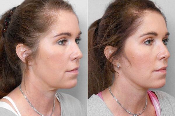 Före- och efterbild på kvinna i halvprofil, som genomfört ett ansiktslyft + övre ögonlocksplastik.