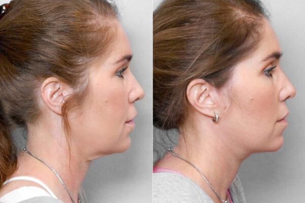 Detaljbild före och efter på kvinna i profil, som genomfört ett ansiktslyft + övre ögonlocksplastik.