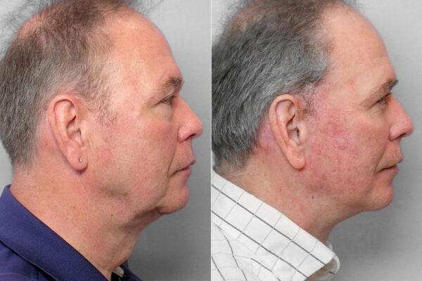 Bild på man i högerställd profil, före och efter ansiktslyft, övre + undre ögonlocksplastik + Total FX laserbehandling.