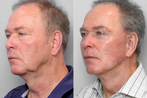 Bild på man i halvprofil före och efter ansiktslyft, övre + undre ögonlocksplastik + Total FX laserbehandling.