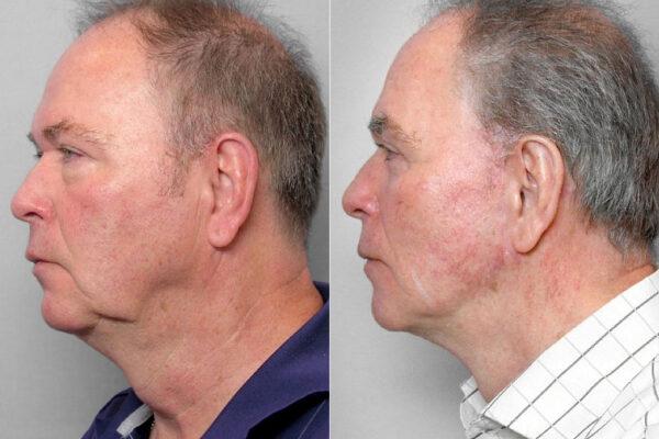 an i vänsterställd profil, före och efter ansiktslyft, övre + undre ögonlocksplastik + Total FX laserbehandling.
