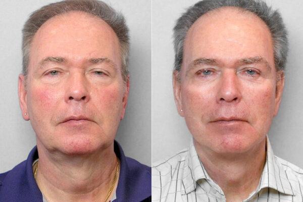 Bild på man före och efter ansiktslyft, övre + undre ögonlocksplastik + Total FX laserbehandling.