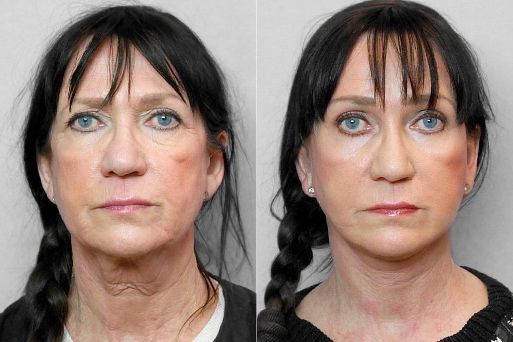 Bild på kvinna före och efter ansiktslyft, pann-/ögonbrynslyft samt Total FX-laserbehandling under ögonen.