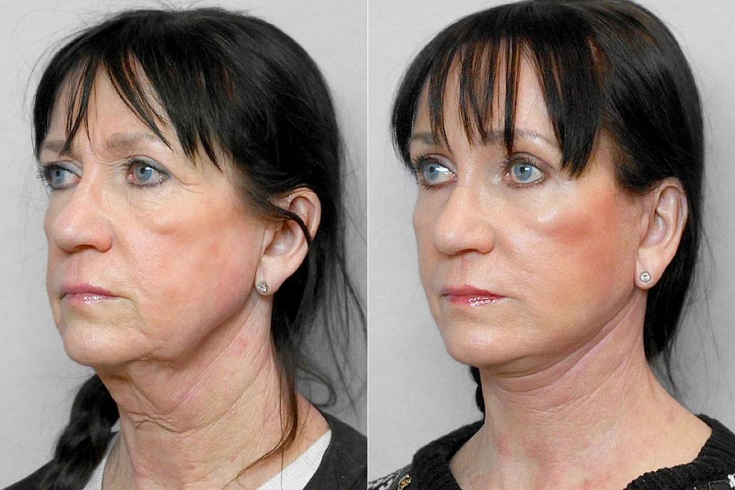 Bild på kvinna i halvprofil, före och efter ansiktslyft, pann-/ögonbrynslyft samt Total FX-laserbehandling under ögonen.