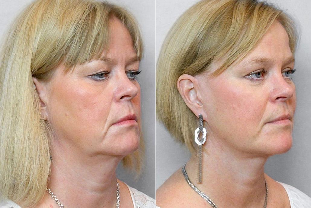 Före- och efterbild på kvinna i högerställd halvprofil, som gjort ansiktslyft, pannlyft, ögonlocksplastik, m.m.