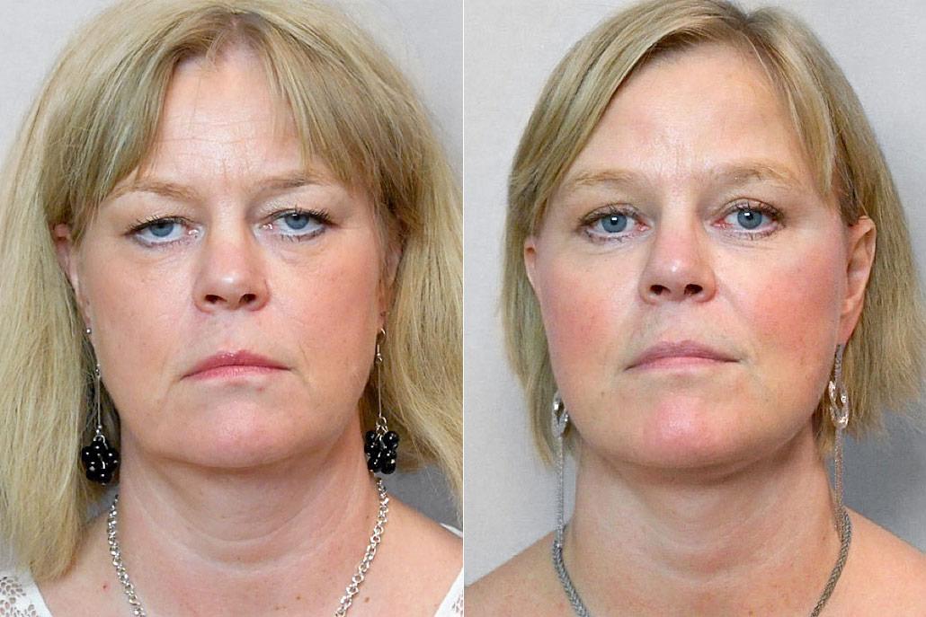 Före- och efterbild på kvinna som genomgått ansiktslyft + pannlyft + ögonlocksplastik + laserbehandling under ögonen.