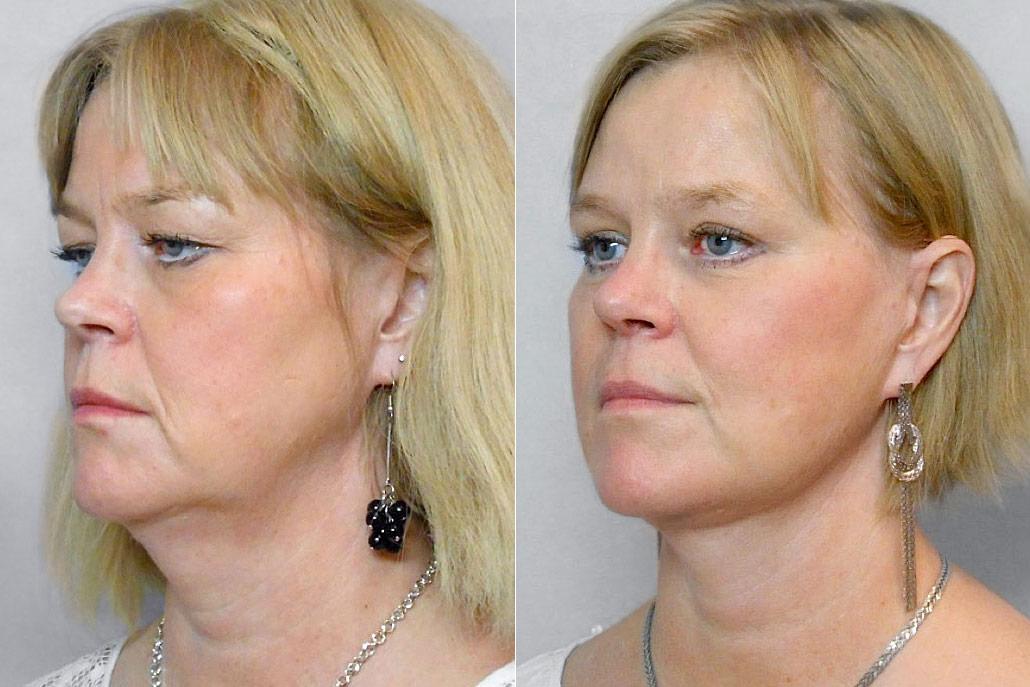 Före- och efterbild på kvinna i vänsterställd halvprofil, som gjort ansiktslyft, pannlyft, ögonlocksplastik, m.m.