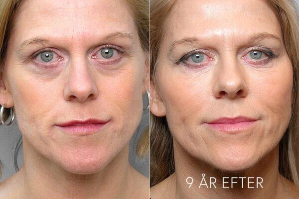 Bild på kvinna före- och 9 år efter behandling med fettinjektion under ögonen.
