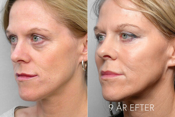 Bild på kvinna i halvprofil, före- och 9 år efter behandling med fettinjektion under ögonen.
