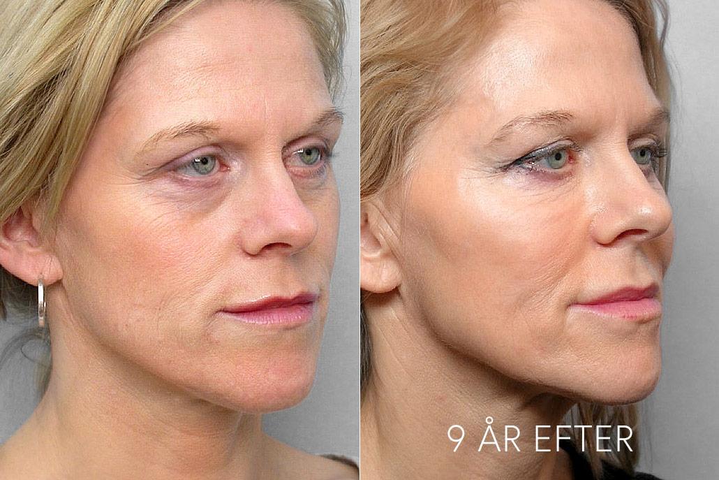 Bild på kvinna i högerställd halvprofil, före- och 9 år efter behandling med fettinjektion under ögonen.