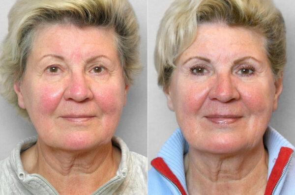 Före- och efterbild på kvinna som genomfört ögonlocksplastik på övre ögonlock. Nr 2