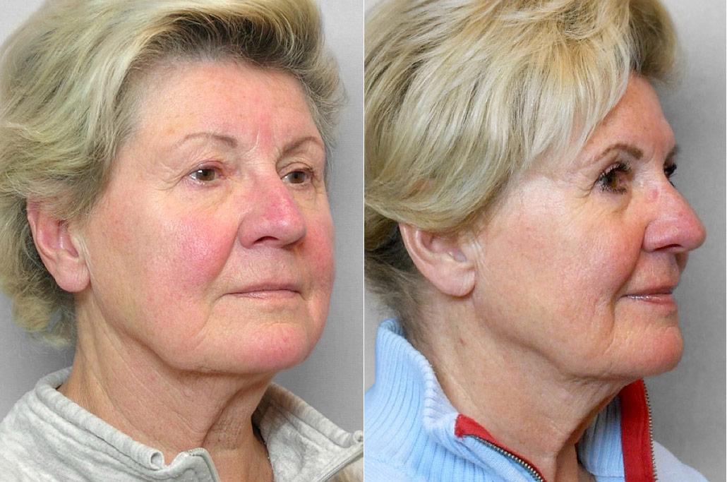 Före- och efterbild på kvinna i höger halvprofil, som genomfört ögonlocksplastik på övre ögonlock.