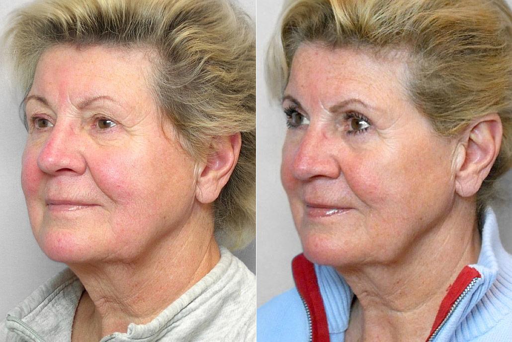 Före- och efterbild på kvinna i vänster halvprofil, som genomfört ögonlocksplastik på övre ögonlock.