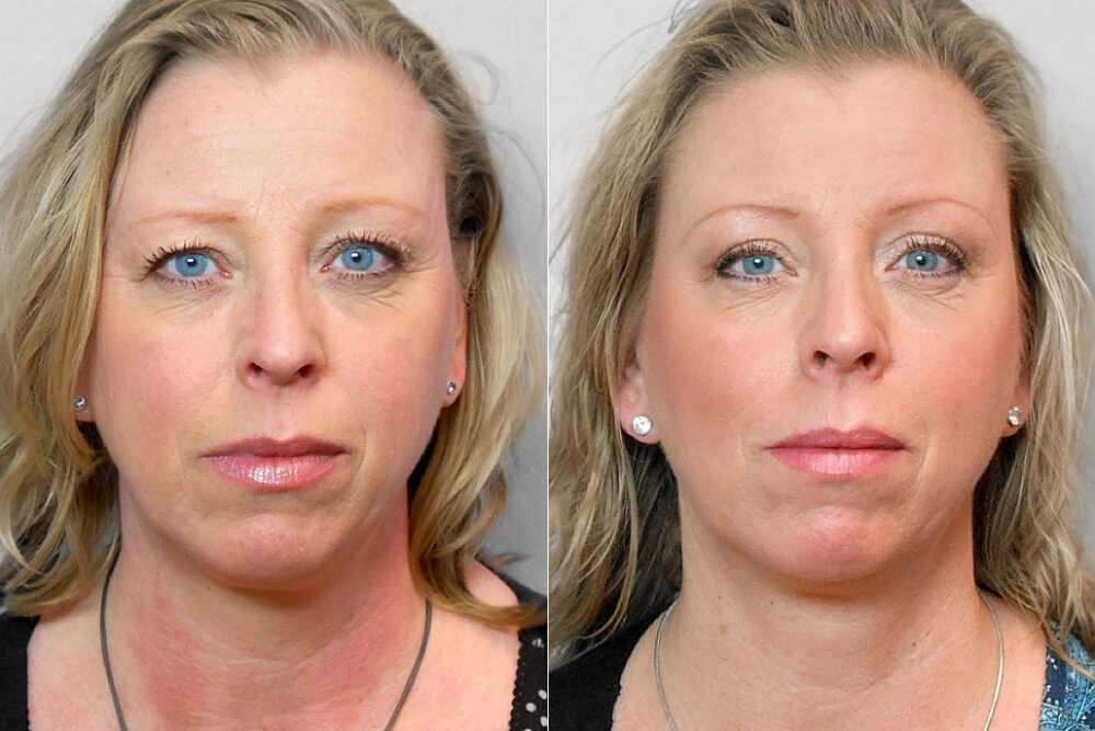 Bild på kvinna som visar resultatet före och efter en genomförd övre ögonlocksplastik.