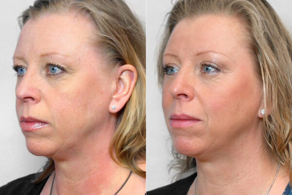 Bild på kvinna i vänster halvprofil, som visar resultatet före och efter en genomförd övre ögonlocksplastik.