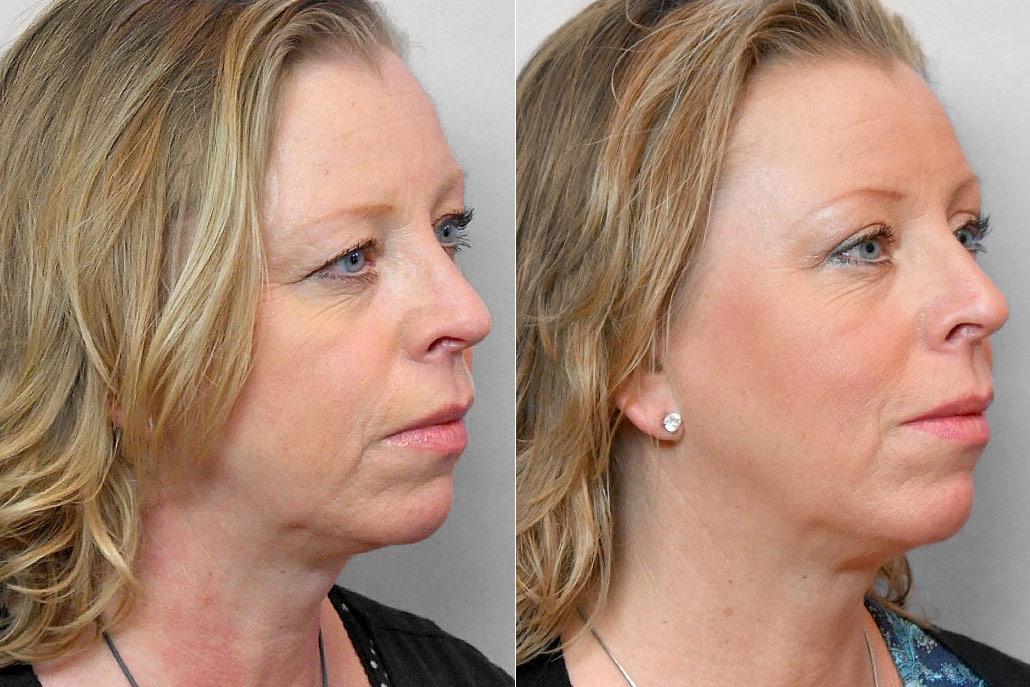 Bild på kvinna i höger halvprofil, som visar resultatet före och efter en genomförd övre ögonlocksplastik.