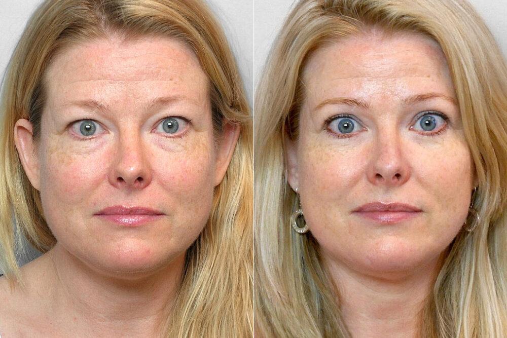 Bild på kvinna före och efter en genomförd ögonlocksplastik av övre och undre ögonlock.