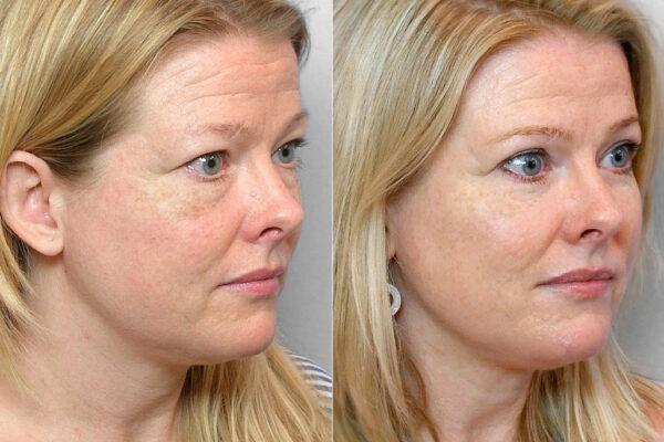 Bild på kvinna i höger halvprofil, före och efter en genomförd ögonlocksplastik av övre och undre ögonlock.