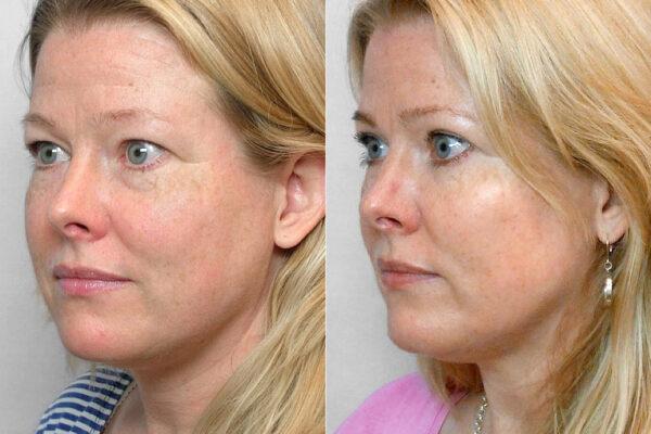 Bild på kvinna i vänster halvprofil, före och efter en genomförd ögonlocksplastik av övre och undre ögonlock.