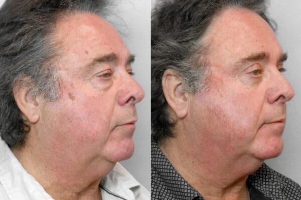 Bild på man i höger halvprofil, som visar resultatet före och efter övre + undre ögonlocksplastik.