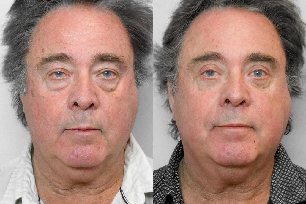Bild på man som visar resultatet före och efter övre + undre ögonlocksplastik.