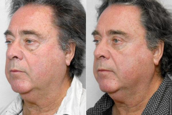 Bild på man i vänster halvprofil som visar resultatet före och efter övre + undre ögonlocksplastik.