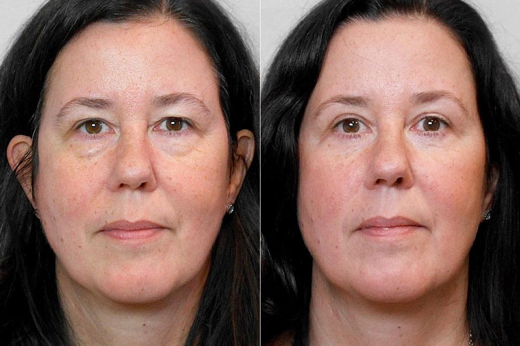 Bild av kvinna från före och efter en genomförd ögonlocksplastik, för övre och undre ögonlock.