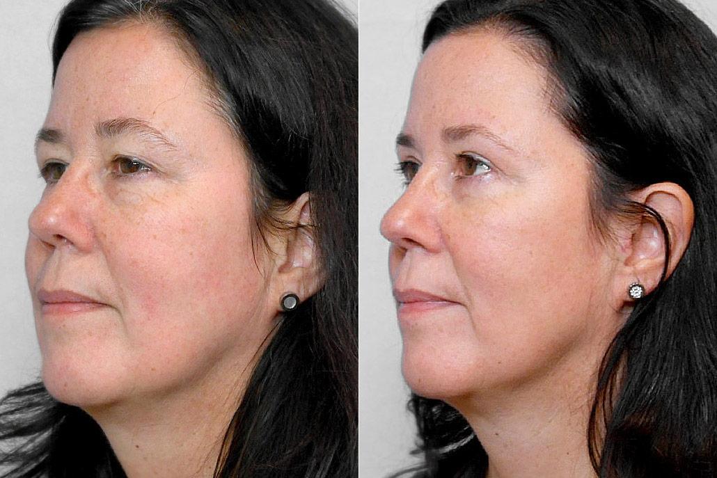 Bild av kvinna i vänster halvprofil, från före och efter en genomförd ögonlocksplastik, för övre och undre ögonlock.