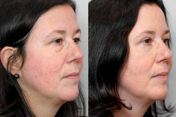 Bild av kvinna i höger halvprofil, från före och efter en genomförd ögonlocksplastik, för övre och undre ögonlock.