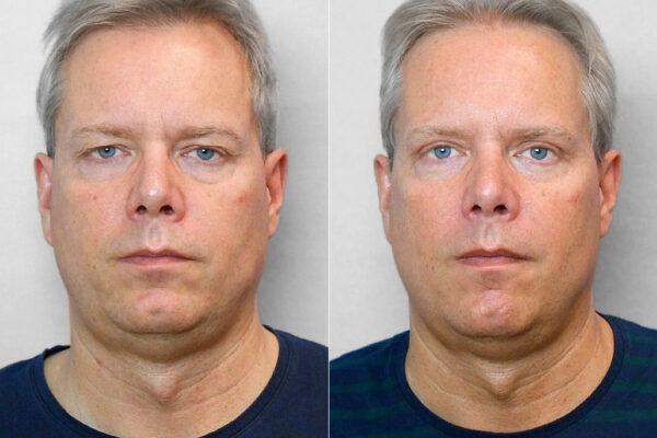 Bild på en man som genomgått övre ögonlocksplastik - bild från före och efter behandlingen.