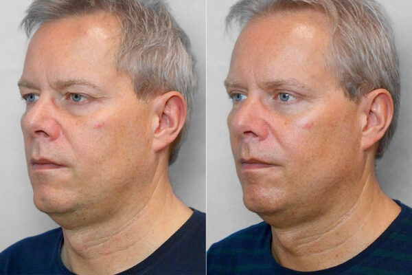 Bild på en man i vänster halvprofil, som genomgått övre ögonlocksplastik - bild från före och efter behandlingen.