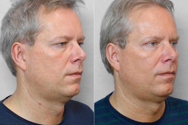Bild på en man i höger halvprofil, som genomgått övre ögonlocksplastik - bild från före och efter behandlingen.