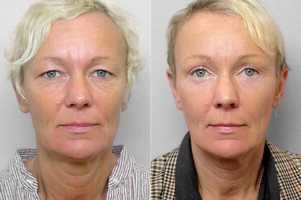 Före- och efterbild på kvinna som genomfört endoskopiskt pannlyft + ögonbrynslyft + övre och undre ögonlocksplastik.