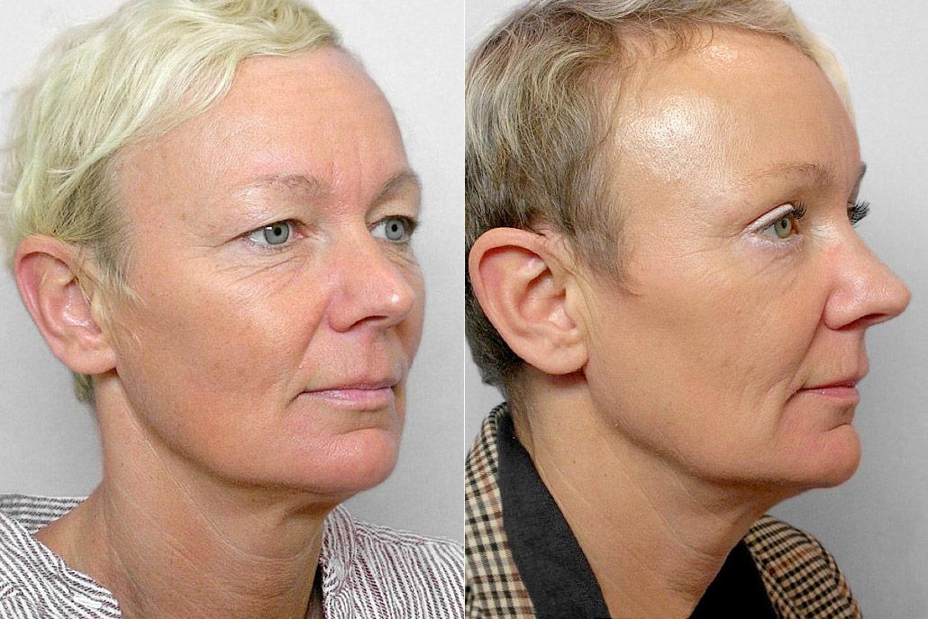 Före- och efterbild på kvinna i höger halvprofil, som gjort endoskopiskt pannlyft + ögonbrynslyft + ögonlocksplastik.