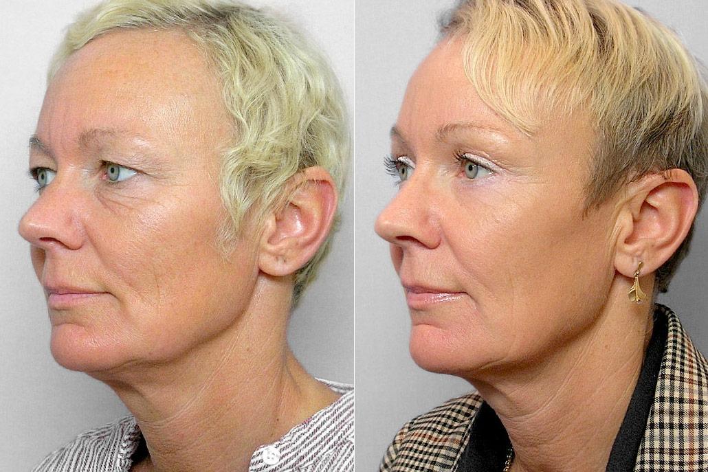 Före- och efterbild på kvinna i vänster halvprofil, som gjort endoskopiskt pannlyft + ögonbrynslyft + ögonlocksplastik.