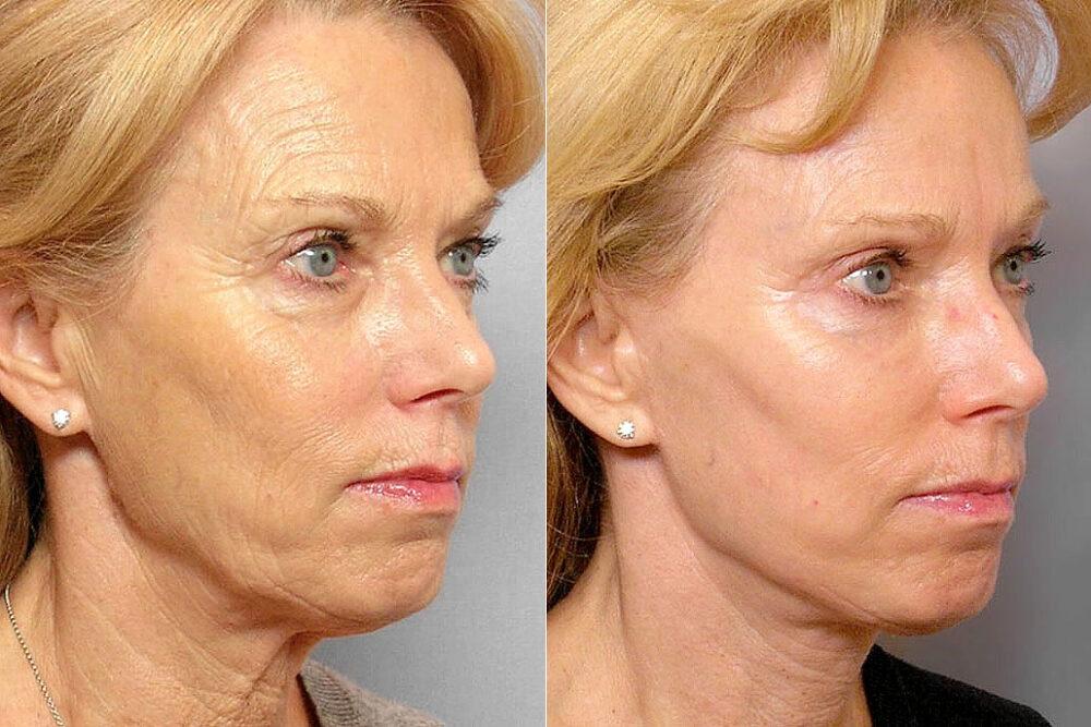 Före och efter-bild i halvprofil på kvinna som genomgått ansiktslyft, hudvårdsbehandling, kemisk peeling.
