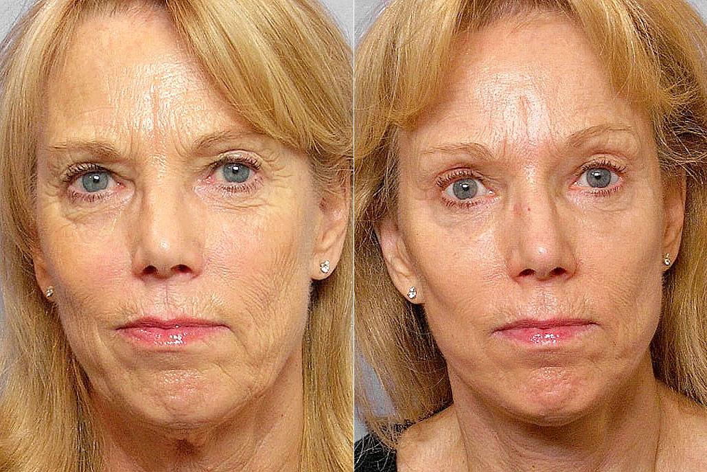 Före och efter-bild på kvinna som genomgått ansiktslyft, hudvårdsbehandling, kemisk peeling.
