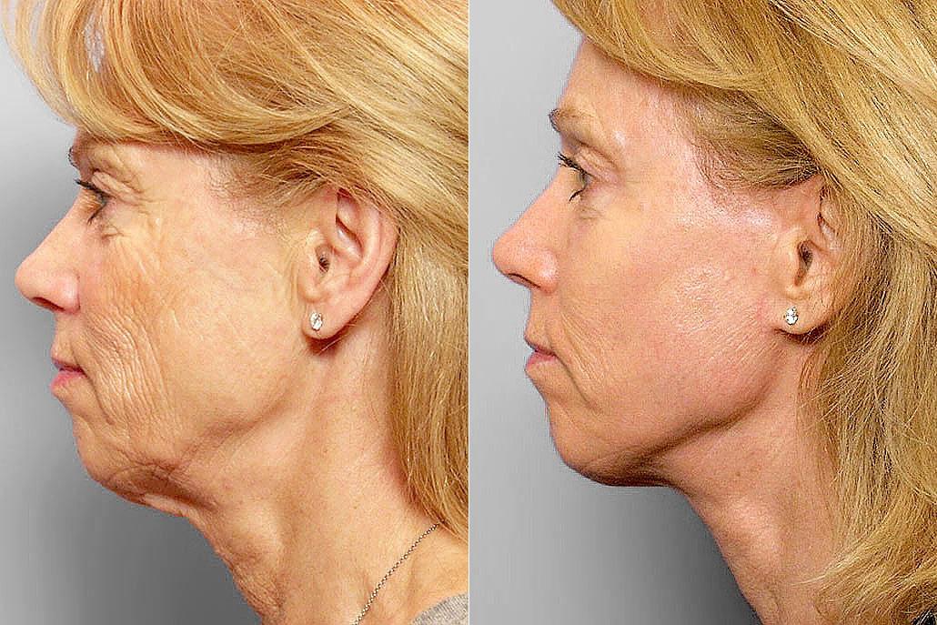 Före och efter-bild i profil på kvinna som genomgått ansiktslyft, hudvårdsbehandling, kemisk peeling.