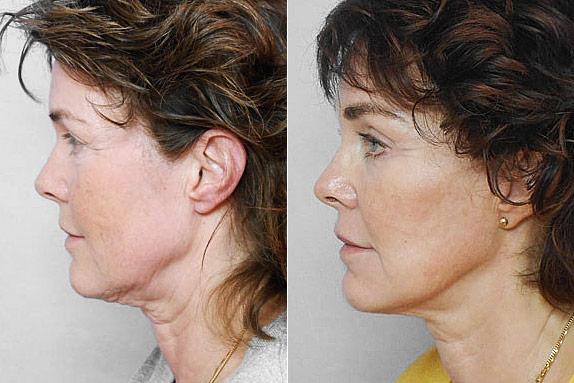 Före- och efterbild på kvinna i profil, som gjort ett ansiktslyft, endoskopiskt pannlyft + fettinjektion i ansiktet.