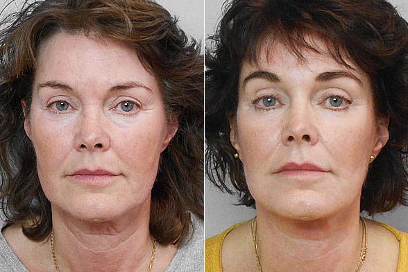 Före- och efterbild på kvinna som genomfört ett ansiktslyft + endoskopiskt pannlyft + fettinjektion för ansiktet.