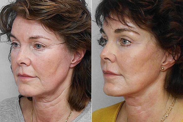 Före- och efterbild på kvinna i halvprofil, som gjort ett ansiktslyft, endoskopiskt pannlyft + fettinjektion i ansiktet.