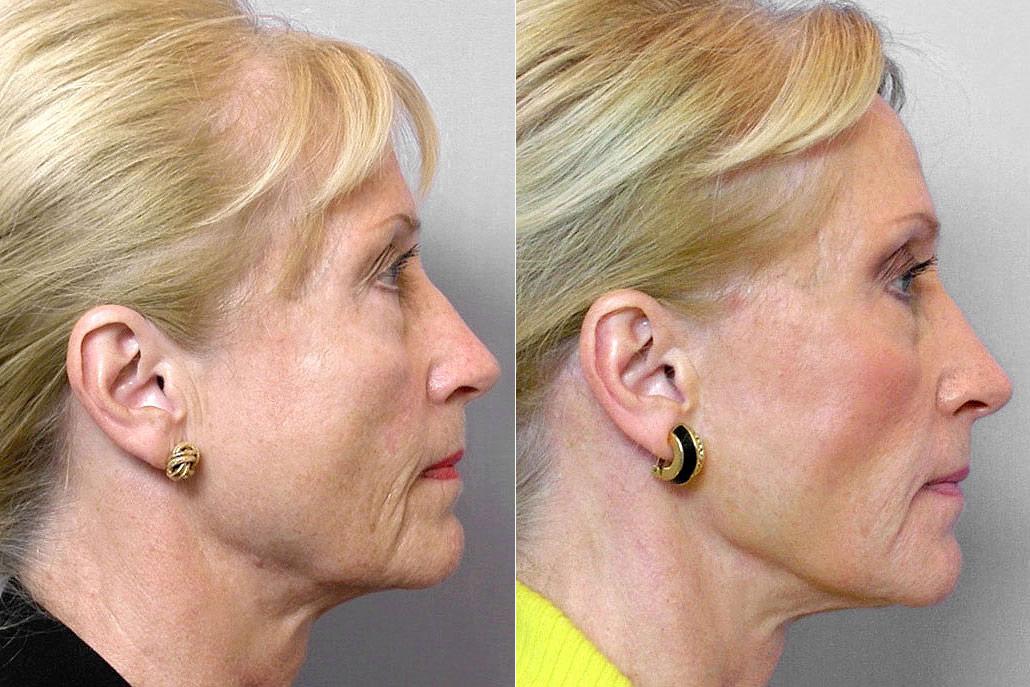 Före och efter-bild på kvinna i profil, som gjort ansiktslyft, pannlyft, hudvårdsbehandling + Restylane-injektioner.