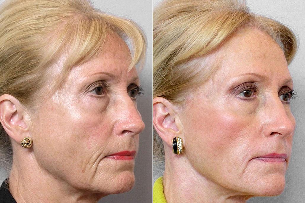 Före och efter-bild på kvinna i halvprofil, som gjort ansiktslyft, pannlyft, hudvårdsbehandling + Restylane-injektioner.