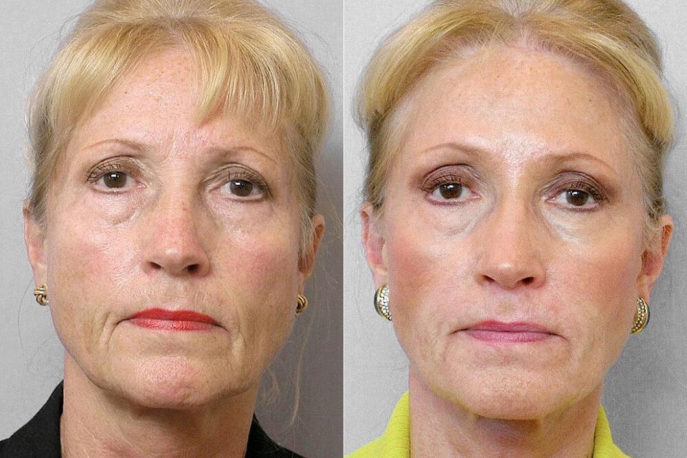 Före och efter-bild på kvinna som genomgått ansiktslyft + Endoskopiskt pannlyft + Hudvårdsbehandling + Restylane-injektioner