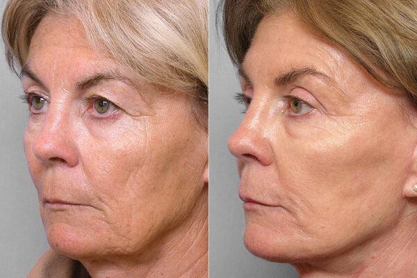 Före och efter-bild på kvinna i halvprofil som genomgått ansiktslyft, ögonlocksplastik, och hudvårdsbehandling