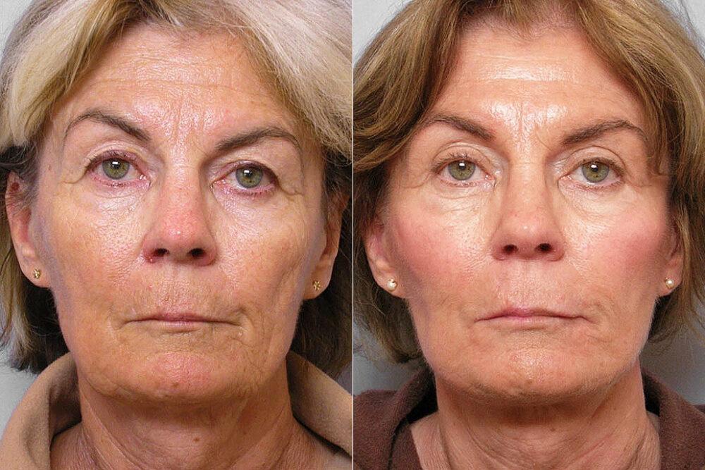 Före och efter-bild på kvinna som genomgått ansiktslyft, ögonlocksplastik, och hudvårdsbehandling