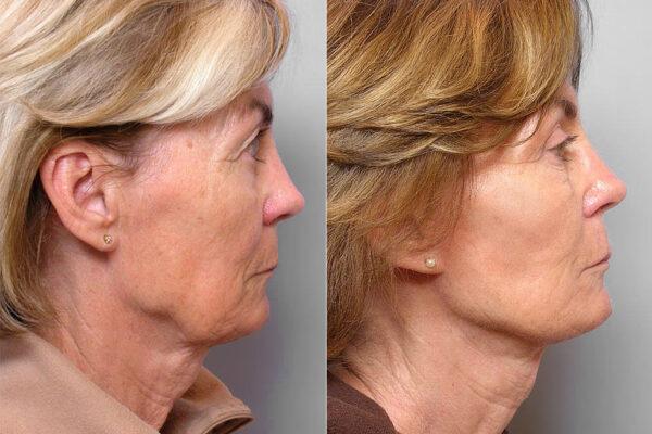 Före och efter-bild på kvinna i profil, som genomgått ansiktslyft, ögonlocksplastik, och hudvårdsbehandling