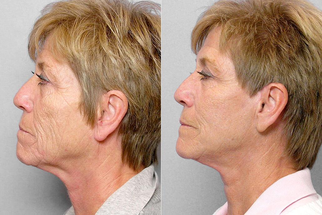 Före och efter-bild på kvinna i profil som genomgått ett ansiktslyft, total FX-laser samt kemisk peeling på hals.