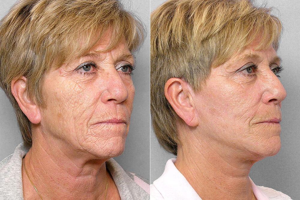 Före och efter-bild på kvinna i halvprofil som genomgått ett ansiktslyft, total FX-laser samt kemisk peeling på hals.